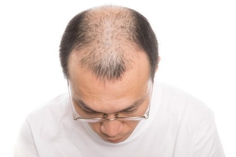 薄毛の原因を知っていますか?